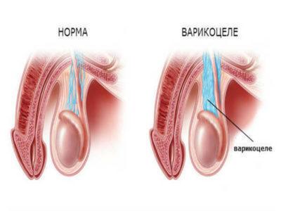 Рецидив варикоцеле после операции, что делать, чем лечить, отзывы