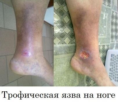 Варикозная язва на ноге: лечение в домашних условиях, фото