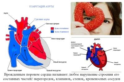 Врожденный порок сердца у новорожденных: что это такое, симптомы, признаки, лечение