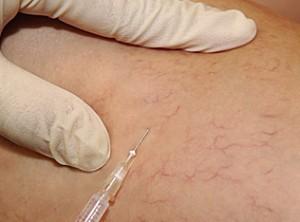 Склерозирование сосудов: что это такое, противопоказания, осложнения, лечение