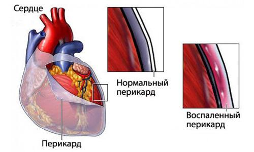 Жжение в сердце: что это такое, причины и что делать, лечение