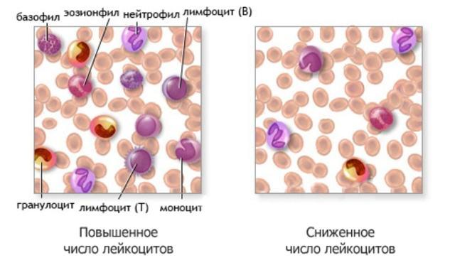 Понижены лейкоциты в крови: почему возникает недостаток белых клеток, что делать при лейкопении