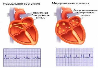 ЧСС у человека: определение показателя, от чего может он зависеть, какая норма частоты сердечных сокращений