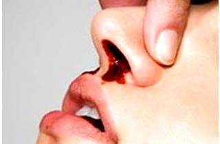 Как остановить кровь из носа у взрослого, что делать, если кровь не останавливается