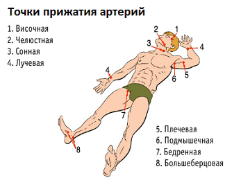 Артериальное кровотечение: признаки и причины, первая помощь, как остановить