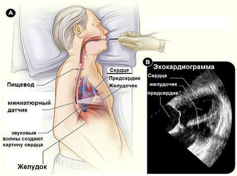 Нарушение сердечного ритма: виды, основные симптомы и причины, лечение