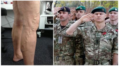 Берут ли в армию с варикозом на ногах в России