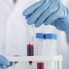 Анализ крови СРБ: что это такое, расшифровка, норма, причины отклонений