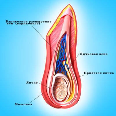 Варикоцеле у мужчин: причины и признаки, диагностика, последствия и лечение