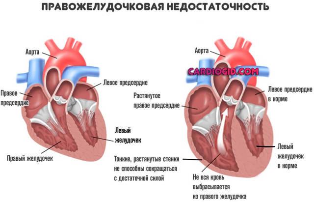 Эффективно укрепить сердце народными средствами