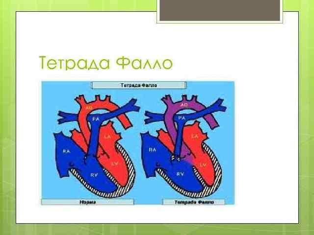 Тетрада Фалло: причины возникновения, симптомы болезни сердца, лечение врожденного синдрома у детей