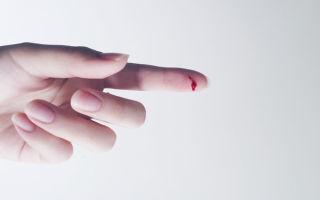 Как остановить кровь: медикаментозные и народные способы остановки сильного кровотечения в домашних условиях