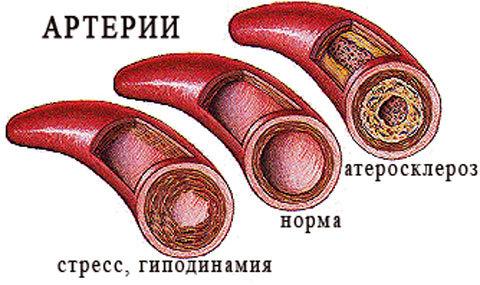 Как принимать Тромбоасс для разжижения крови, до или после еды