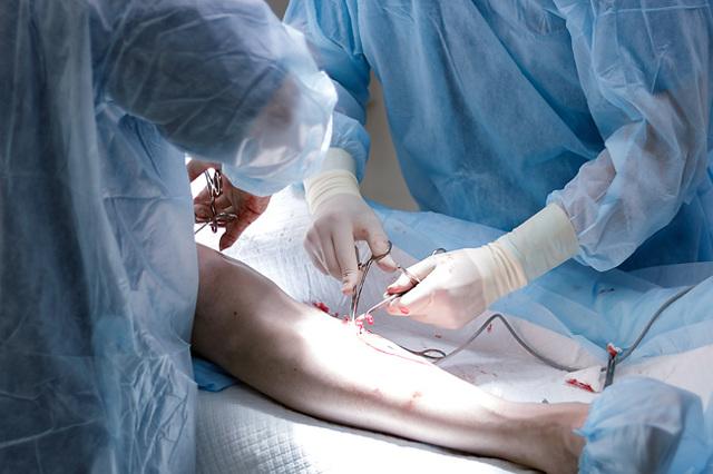 Комбинированная флебэктомия: что это, ход операции, послеоперационный период, отзывы
