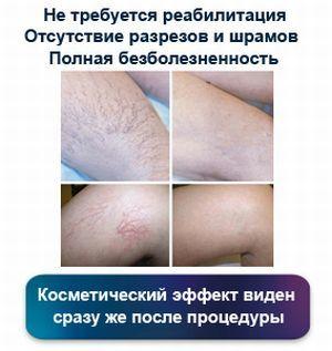 Эхосклеротерапия варикозных вен: что это, побочные эффекты, отзывы, цена