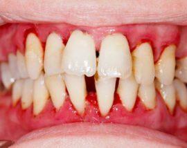 Привкус крови во рту: что означает, причины, заболевания, лечение
