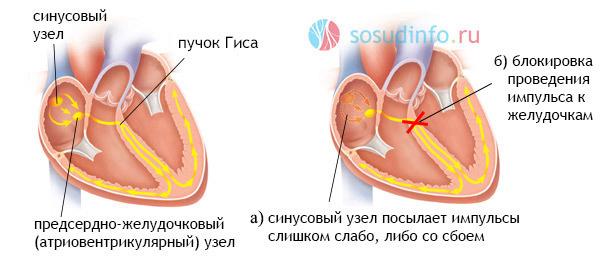 Брадиаритмия: что это такое, виды, причины, симптомы, диагностика, лечение