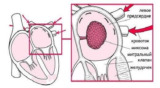 Миксома сердца: что это такое, причины, диагностика, признаки, симптомы и лечение