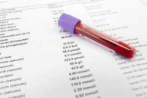 Как правильно сдавать общий анализ крови: натощак или нет, подготовка, таблицы норм у детей и взрослых, расшифровка