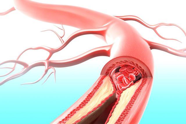 Блокада левой ножки пучка Гиса: что это такое, виды, причины, диагностика, лечение, чем опасно, ЭКГ