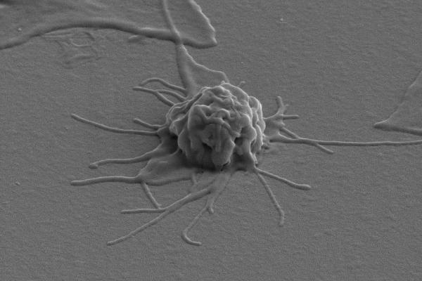 Тромбоциты: норма содержания в крови, что означает показатель, за что отвечают клетки