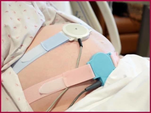 Чем опасна брадикардия во время беременности