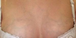 Видны вены на грудной клетке у женщин, причины, что делать