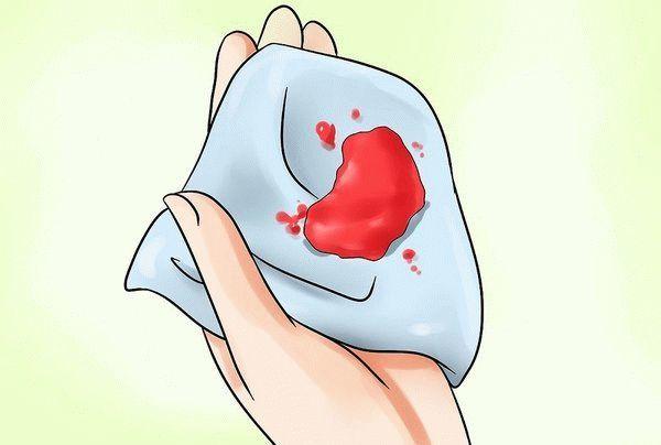 Кровь из влагалища, но не месячные: причины кровотечений, что делать