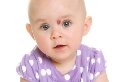 Гемангиома на голове у взрослых, детей и новорожденных: лечение
