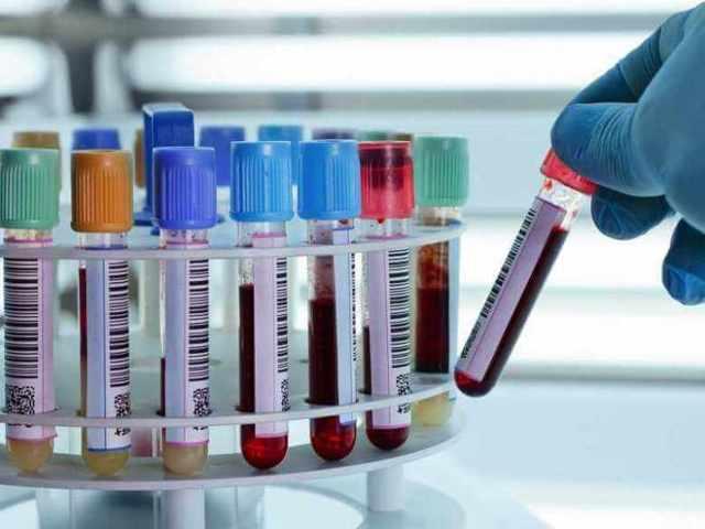 Анализ крови на гормоны щитовидной железы т3 св т4 св ттг: что это такое, как сдавать