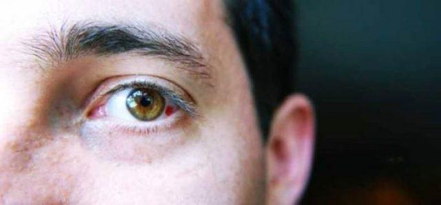 Кровоизлияния в глазу: чем опасно и нужно ли обращаться к врачу
