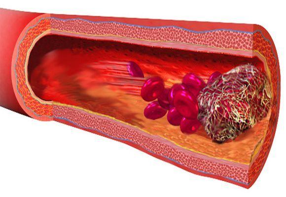 Флеботромбоз нижних конечностей: виды, симптомы и признаки, лечение, осложнения