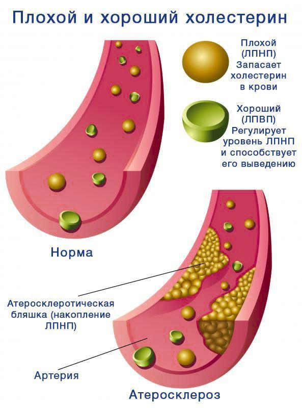 Холестерин ЛВПВ: что это такое, что значит если повышен или понижен