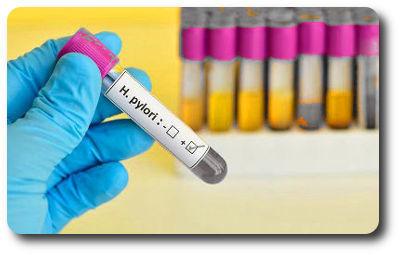 Положительный ig g: расшифровка анализа, что означает наличие антител этого класса