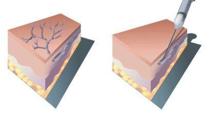 Пенная склеротерапия вен нижних конечностей: что это, в чем суть операции, через сколько виден результат