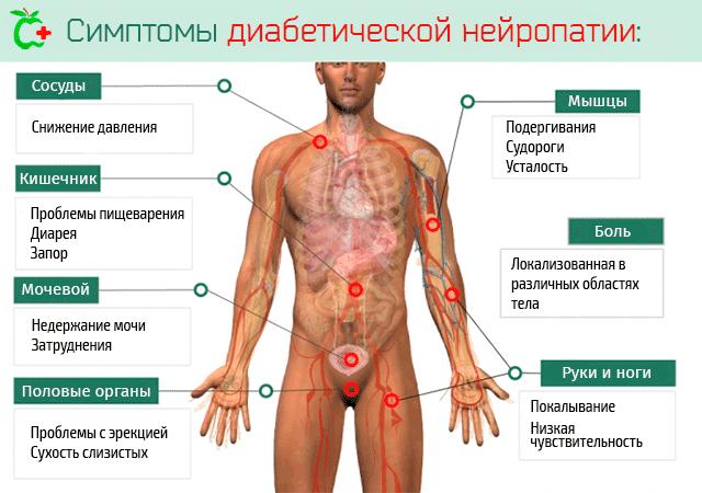 Полинейропатия нижних конечностей: причины возникновения и признаки, лечение болезни