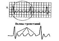 Трепетание предсердий: формы, причины, симптомы, ЭКГ-признаки, диагностика и лечение