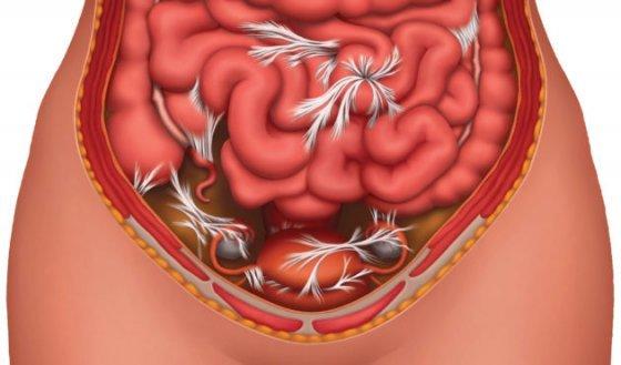 Спаечная болезнь брюшной полости: причины, диагностика, лечение