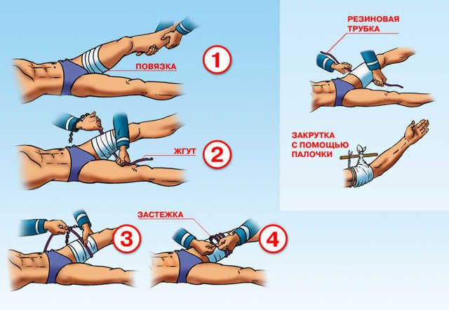 Эффективные способы временной остановки кровотечения