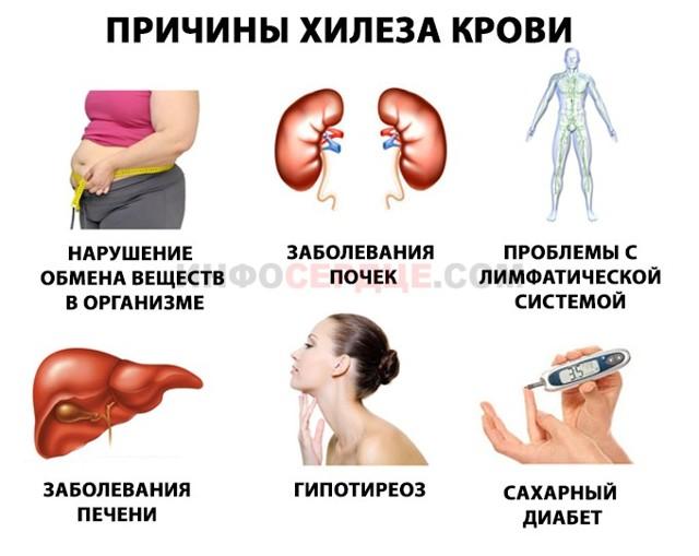 Хилез крови: что это такое, причины, симптомы и лечение