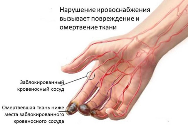 Болезнь Бюргера: что это такое, описание, причины, симптомы, диагностика, лечение