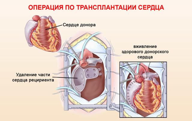 Пересадка сердца: как делают, стоимость в России, продолжительность жизни, прогноз