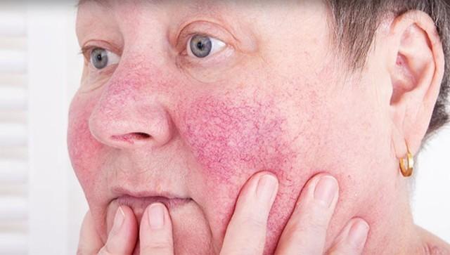 Гиперемия: причины покраснения кожных покровов, симптомы и лечение гиперемированной кожи