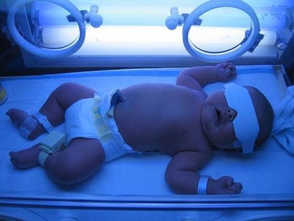 ГБН плода (гемолитическая болезнь новорождённых): причины возникновения, последствия и прогноз