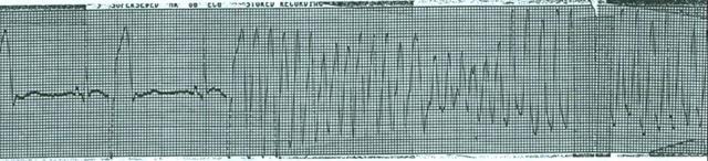 Предсердная экстрасистолия на ЭКГ: что это такое, код по мкб 10, признаки, причины, лечение