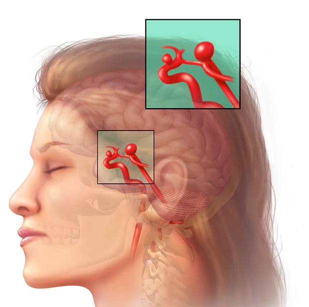 Спазм сосудов головного мозга: симптомы, лечение и причины