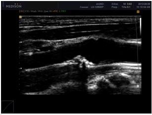 Дуплексное сканирование сосудов головы и шеи: ультразвуковое исследование сосудистых структур, плюсы и минусы