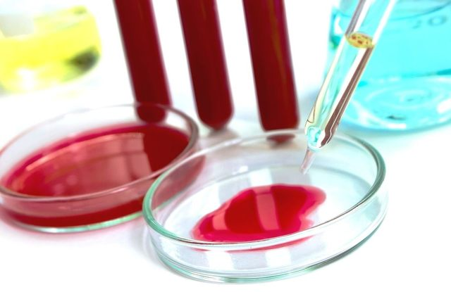 СОЭ: норма у женщин, метод вестергрена, оседание эритроцитов