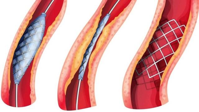 Диабетическая ангиопатия сосудов нижних конечностей: что это такое, виды, причины, симптомы, диагностика и лечение, последствия и меры профилактики