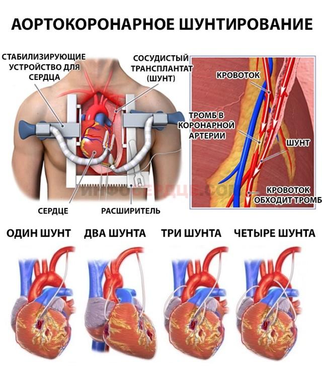 Постинфарктный кардиосклероз: что это такое, причины, симптомы, диагностика, лечение